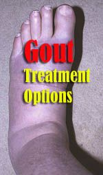 Understanding which home remedies work for easing the pain of gout is super important. This is because gout pain can be incredibly excruciating. In this article we uncover the most effective natural remedies known about for curing this problem without harmful side effects.