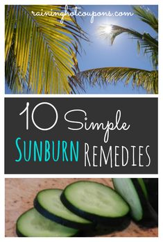 10 Simple Sunburn Remedies- Good to know with the fair skin we were blessed with