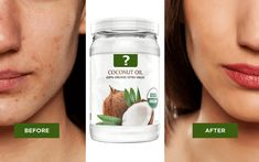 Does Coconut Oil Help Acne Scars?