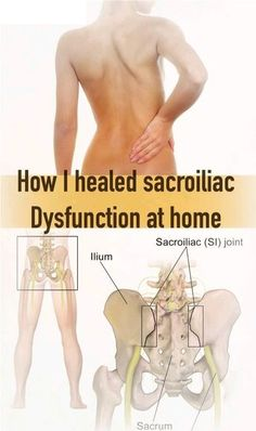 Sacroiliac joint dysfunction is quite common nowadays. Especially women experience this kind of sciatic pain during and after pregnancy. But also, people who have jobs that require them to sit a lot can get this condition. Many times, doctors will inject Cortisol into the joint to relieve symptoms.