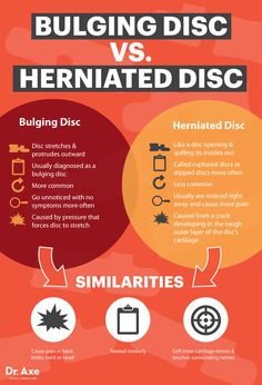 Bulging disc vs. herniated disc - Dr. Axe http://www.draxe.com #health #holistic #natural