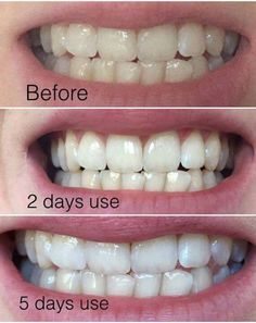 Gentle dental most effective teeth whitening treatment,what happens when you get a root canal gum disease treatment,treatment for swollen and bleeding gums constant tooth sensitivity. Ap 24 Whitening Toothpaste, Whitening Fluoride Toothpaste, Gum Disease Treatment, Tooth Sensitivity, Receding Gums, Best Skincare Products, Pasta, Teeth Cleaning, Natural Treatments