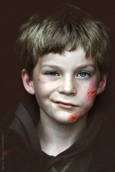 Tough wounded kid after falling off his bike by Marcel - Childhood, Portrait - Stocksy United Portraits, Portrait Poses, Portrait Photography, Reference Images, Photo Reference, Cute Boys, Cool Kids, Face Drawing Reference, Face Study