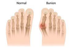 ¿Qué es un Juanete o Hallux Valgus? Natural Treatments, Natural Remedies, Bunion Exercises, Tailors Bunion, Bunion Pads, Bunion Surgery, Podiatry, Foot Pain, Blood Cells