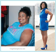 weight loss before and after women | Weight Watchers | Before & After Weight Loss Photos