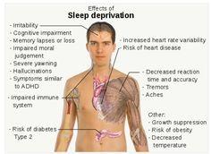 Sleep Deprivation -- Do you get 7 hours of sleep a night?