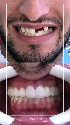 Here's adam. Our new patient. He came to get a brand new smile and it's a sucess! 🤩 Let us know if you like the result ! For more information, please contact us !. #Bodyexpert #Testimony #BeforeAfter #SmilePerfect #ImplantsDental #DentalCrowns #TestimonyDentalCare #PerfectTeeth #MedicalTourism #DentalCare #DentalClinics #Turkey #Istanbul #Hollywoodsmile #Emax #DentalImplants #implants #Zirconia Implants Dentaires, Dental Implants, Medical Care, Dental Care, Perfect Teeth, Dental Crowns, Teeth Care, Hair Transplant, Clinique
