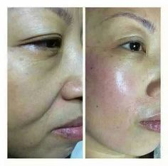 hifu machine treatment results