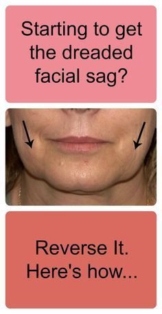 There are more than 40 muscles in the face. As we age, we lose muscle tone and sagging happens. A crucial part of a face lift procedure is the tightening of the underlying muscles. Cheeks that were once high and plump sag into jowls as the underlying foundation of the face (muscle tissues) begin to sag and become loose. Comparison below of Face Lift Surgery Results vs Face Toning Weights Results (on your average person - female subject in Face Weights testing before and after is 47 years ...
