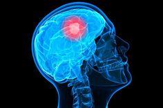 dấu hiệu ung thư não, http://akchongungthu.com/dau-hieu-nhan-biet-ung-thu-nao-som-nhat-chinh-xac-nhat/