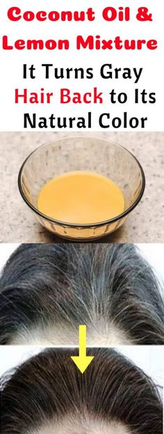 Hair Remedies Coconut Oil and Lemon Mixture: It Turns Grey Hair Back to Its Natural Color! Cold Home Remedies, Home Remedies For Hair, Natural Home Remedies, Herbal Remedies, Health Remedies, Vinegar Detox Drink, Apple Cider Vinegar Detox, Grey Hair Remedies, Thinning Hair Remedies