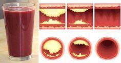 Dieser köstliche Saft reinigt auf natürliche Weise deine Arterien und beugt Herzkrankheiten vor