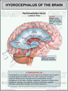 This trial exhibit depicts hydrocephalus injury of the brain showing enlarged ventricles within the brain, in the lateral view with injury and description labels. Nursing Schools In Nyc, Accredited Nursing Schools, Nursing Career, Lpn Schools, Lpn Programs, Nursing Programs, Certificate Programs, Nursing Notes, Nursing School Requirements
