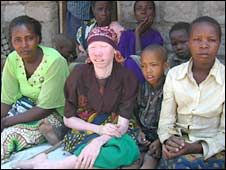 Living in fear: Tanzania's albinos  Twenty-five people with albinism have been murdered in Tanzania since March, a BBC investigation has found. Albinos are targeted for body parts that are used in witchcraft, and killings continue despite government efforts to stamp out the grisly practice, the BBC's Karen Allen says. Once, albinos used to seek shelter from the sun. Now they have gone into hiding simply to survive, after a series of killings linked to witchcraft.