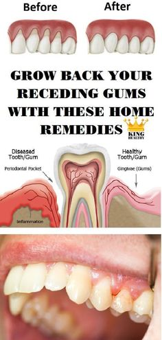Gingivitis usually known as gum disease is a dental issue characterized by symptoms like constant bad breath red or swollen gums and very sensitive sore gums that may bleed. If left untreated it can advance to periodontitis and become a very serious Gum Health, Teeth Health, Healthy Teeth, Dental Health, Healthy Tips, Oral Health, Face Health, Dental Care, Healthy Food