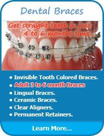 #Dental Braces #Dental_Braces_Delhi #Dental_Braces_India