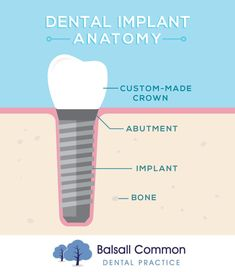 DENTAL IMPLANTS have the same fundamental shape of real teeth, and not only look and feel like your real teeth, but allow you to eat better and maintain your long term oral health! Oral Health, Dental Health, Dental Care, Dental Receptionist, Heal Cavities, Dental Implants, Dental Hygienist, Dental Facts, Dental Bridge