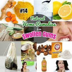 #14 Best Home Remedies for Gingivitis Swollen Gums. Easy Natural Home remedies to treat sore gums at home.