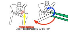 Stretching - Joint Distraction for the Hip