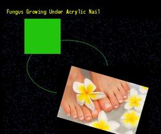 Fungus growing under acrylic nail - Nail Fungus Remedy. You have nothing to lose! Visit Site Now