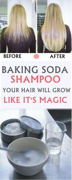 Baking Soda Shampoo: It is going to Make Your Hair Grow Like It really is Magic! - Baking Soda Shampoo: It is going to Make Your Hair Grow Like It really is Magic! Baking Soda For Dandruff, Baking Soda Shampoo, Baking Soda Hair Growth, Baking Soda For Hair, Make Hair Grow, How To Make Hair, Salud Natural, Stop Hair Loss, Beauty Regimen