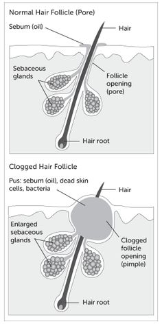 What causes acne. An in-depth look for greater understanding. Clear Skin Diet, How To Get Rid Of Pimples, Acne Breakout, Natural Home Remedies, Hair Oil, Skin Problems, Locs, Natural Remedies, Goddess Braids