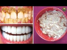 ITS NOT A Joke With this mixture you will get rid of your tartar in just 7 minutes Dental Health, Dental Care, Republic Of Turkey, Fitness Journal, Good To Know, Oatmeal, Beauty Hacks, Food, Youtube Hacks