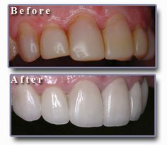 The fastest way to get your perfect smile is dental veneers. Veneers Teeth, Dental Veneers, Dental Hygiene, Dental Care, Teeth Whitening Remedies, Porcelain Veneers, Dental Procedures, Family Dentistry, Health