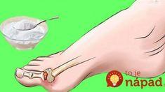 Toto by mal urobiť každý, kto trpí Dnou alebo inou zápalovou chorobou: Najlepšia rada, ktorá pomôže s bolesťou! Beauty Detox, Gout, Dena, Reflexology, Feet Care, Organic Beauty, Diabetes, Life Is Good, Healthy Lifestyle