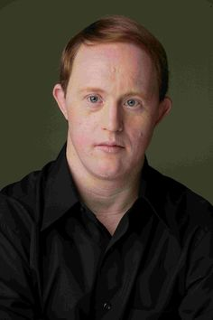 """Christopher Joseph """"Chris"""" Burke (born August is a American actor and folk singer who has Down syndrome. He has become best known for his character Charles """"Corky"""" Thacher on the television series Life Goes On. Down Syndrome Actors, Down Syndrome Quotes, Down Syndrome And Autism, Down Syndrome Baby, Down Syndrome People, Down Syndrome Awareness, Welcome To Holland, Normal Life, Life Goes On"""