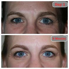WOW!  Results from using the Redefine Regimen along with the Redefine Eye Cream and the Redefine Night Renewing Serum.  80% of all damage done to your skin Can Be Reversed!  Start Taking Steps Today On How You Will Look Tomorrow!  https://sarahkwheeler.myrandf.com/Shop/REDEFINE