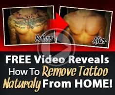Love this ** Laserless Tattoo Removing Evaluate