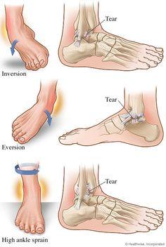 Dolor de tobillo puede ser causado por algo tan insignificante como un calzado mal ajustado o tan grande como una lesión. Muchos tipos de dolor en el tobillo se originan en el, lado exterior, o lateral del tobillo. Lo que muchas personas no se dan cuenta es que el cuidado quiropráctico puede ser muy beneficioso para ayudar no sólo a su tobillo, pero otras cuestiones que surgen debido a la lesión en el tobillo.