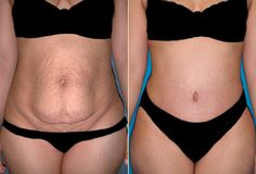 Helping you get your tummy the shape and size it rightfully deserves, tour2india4health offers international patients low costs tummy tuck surgery in India.