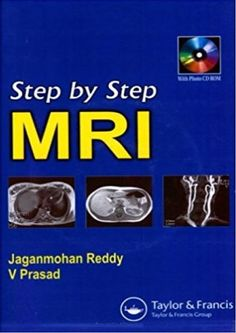 Step by Step MRI provides those just beginning to work or to train in a radiology department with an introductory background. Radiology Imaging, Brain Anatomy, Medical Humor, Medical Students, Books, Pdf, Study, Mens Suits, Articles