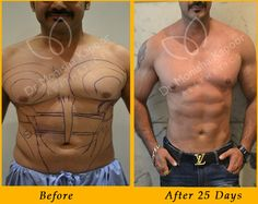 Monisha Kapoor aesthetics is leader in Liposuction for men. We have expertise in ab implants to six pack surgery for men at affordable costs in Delhi. Cosmetic Procedures, Toned Abs, Six Pack Abs, Beautiful Children, Perfect Body, Surgery, Mens Fitness, Modeling