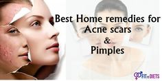 Top 10 #homeremedies for #acnescars – Acne Treatment