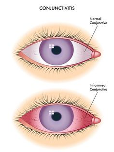 antibiotic eye drops - Google Search