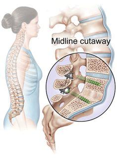 Bilderesultat for human system nervous spondylitis after chirurgical fixation