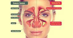 infection-sinus