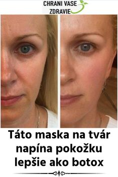 Táto maska na tvár napína pokožku lepšie ako botox Diese Gesichtsmaske strafft die Haut besser als Botox Natural Cosmetics, Facial Masks, Good Skin, Face And Body, Health And Beauty, Health Fitness, Hair Beauty, Make Up, Medicine