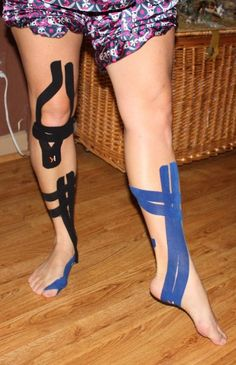 KT Tape for knee, shin splints, and ankle by KT TAPE, via Flickr