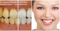 Cuida tu higiene dental -Sonríey luce unos dientes blancos y bonitos  Tener unos dientes bonitos es una de las metas de muchísimas person...