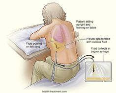1000+ images about Health Treatment on Pinterest   Hip ...