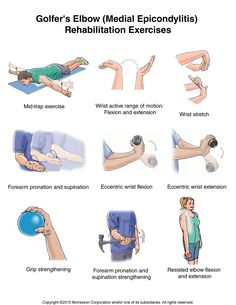 Golfer's Elbow (Medial Epicondylitis) Exercises: Illustration