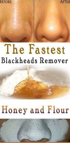 5 best ways to naturally remove armpit hair - st . - 5 best ways to remove armpit hair naturally – style novi – - Blackheads On Cheeks, Remove Blackheads From Nose, Remove Acne, Removal Of Blackheads, Remedies For Blackheads, Beauty Hacks Blackheads, Remove Stains, Facials For Blackheads, Pimples