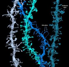 Images from sleep research show how the brain resets during sleep. Synapses grow with daytime stimulation and shrink by nearly 20 percent during sleep. Microscope Pictures, Electron Microscope Images, Neural Connections, Cerebral Cortex, Learning Ability, Sleep Help, Molecular Biology, University Of Wisconsin, Science News
