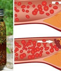 Укроп, мёд и валериана. Всего 1 столовая ложка сотворит чудо с твоими сосудами