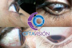 De qué se trata el queratocono. Deténlo en cuanto antes.  http://www.oftavision.com.mx/detener-el-queratocono/