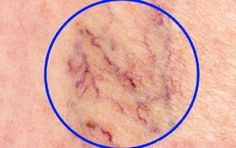 The Best Home Remedies to Get Rid of Spider Veins: May 2015 Beauty ~ What are spider veins? Spider veins, medically known as telangiectasias or angioectasias, are similar to varicose veins, but smaller. These tiny veins, found close to the surface of Get Rid Of Spider Veins, Get Rid Of Spiders, Spider Webs, Varicose Vein Remedy, Varicose Veins, Natural Home Remedies, Natural Healing, Health And Beauty Tips, Health And Wellness